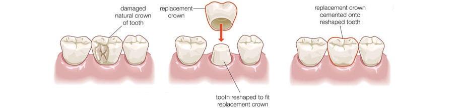 Photo of Dental Crown